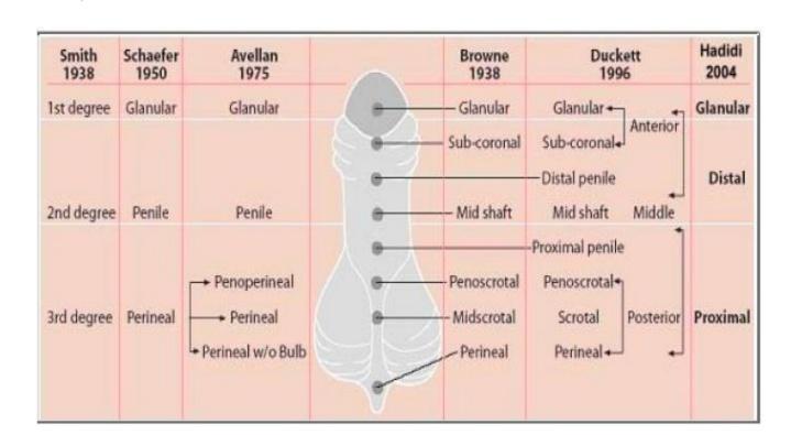 Klasifikasi hipospadia berdasarkan lokasi meatus uretra  eksterna (dikutip dari Hadidi, 2004).